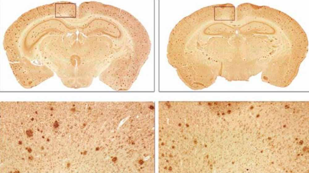 Mice-Alzheimer's-symptoms-reversed-1-week-protein-injection