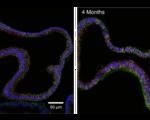 Novel technique enables researchers grow fallopian tubes advances potential treatments reproductive disorders