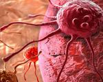 First human clinical trial crispr modify t cells destroy cancer