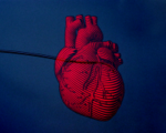 Doctors autonomous surgery robot heart 300x158