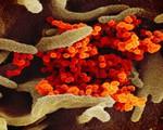 Coronavirus outbreak covid 19